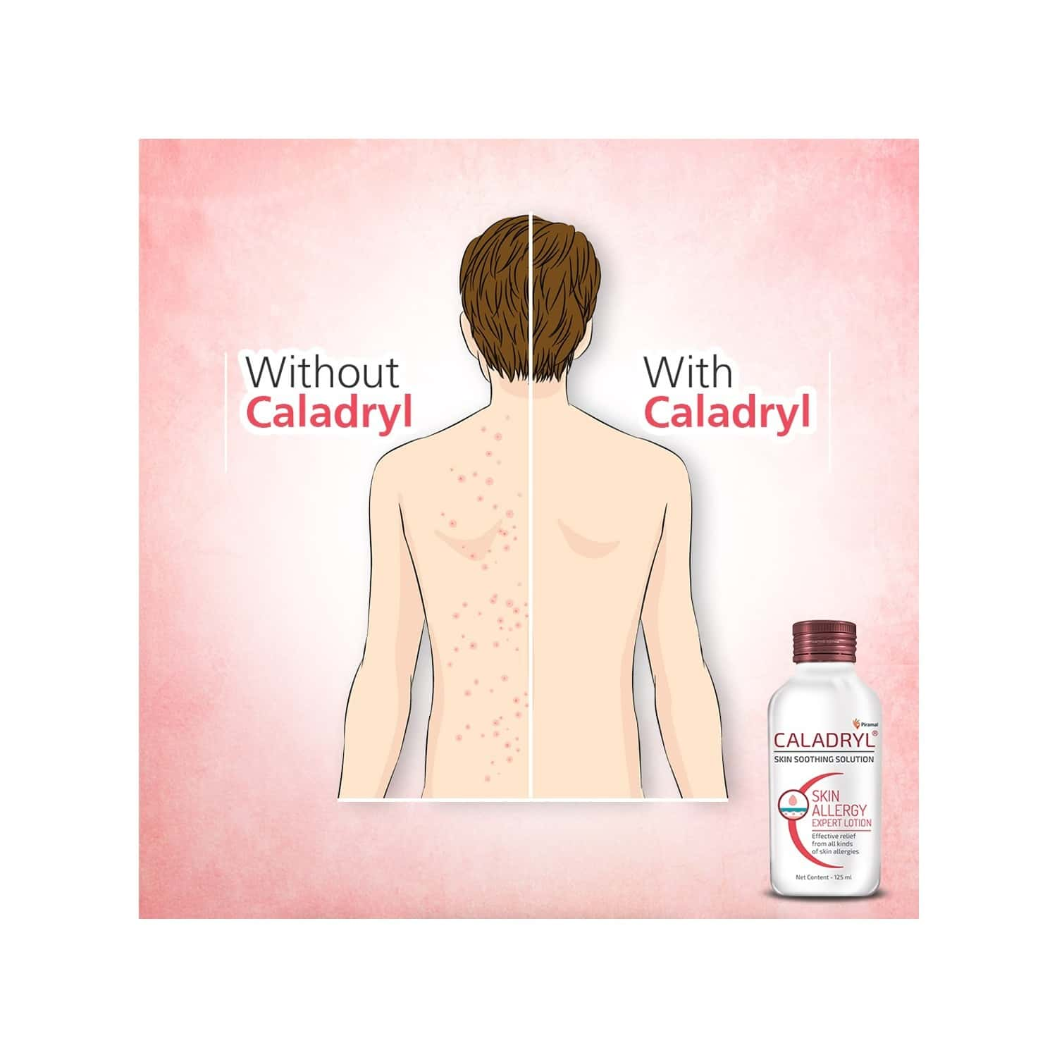 Caladryl Skin Allergy Lotion For All Skin Types - 65ml